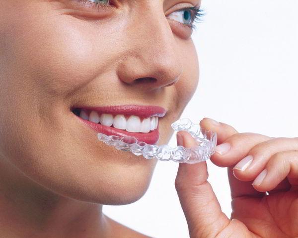 Nakładki wybielające zęby